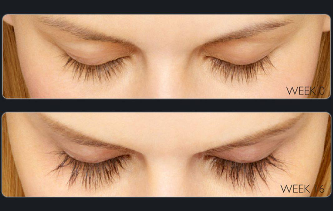 Too Few or Inadequate Eyelashes: An Affordable, Safe Solution