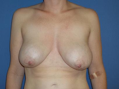 Before and After Breast Lift Case #1178