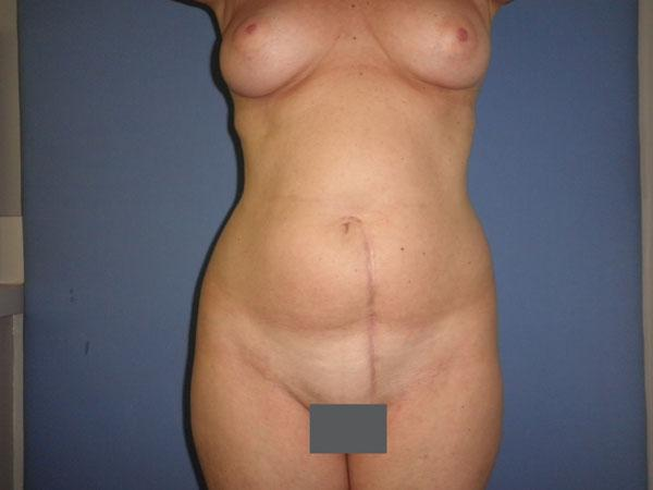 Before and After Abdominoplasty Case #13430