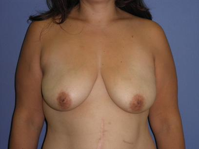 Before and After Breast Lift Case #20222