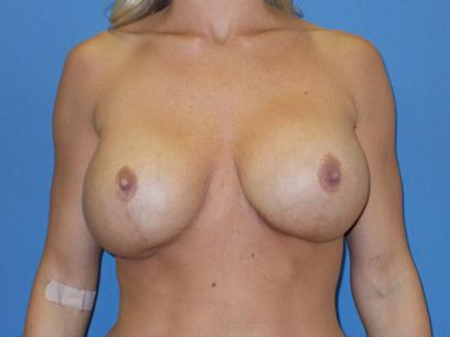 Before and After Breast Lift Case #29696