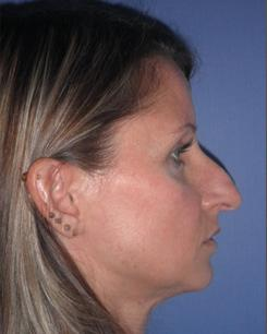 Before and After Nose Surgery Case #29928
