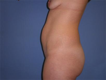 Before and After Abdominoplasty Case #30884