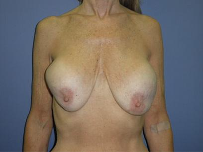 Before and After Breast Reconstruction Case #31108