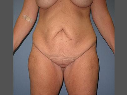 Before and After Abdominoplasty Case #32143