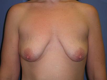 Before and After Breast Lift Case #32224