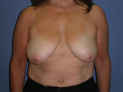 Before and After Breast Lift Case #32405