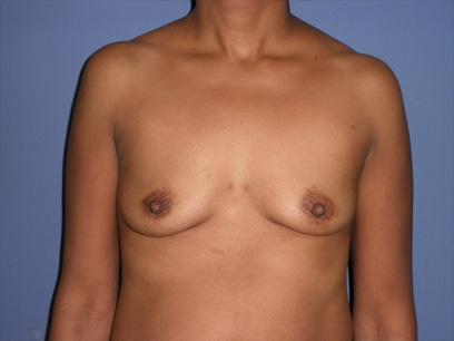 Before and After Breast Augmentation Case #32734