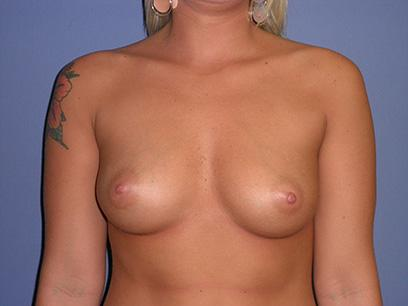 Before and After Breast Augmentation Case #33403