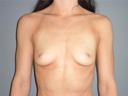 Before and After Breast Augmentation Case #33422