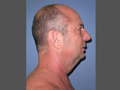 Before and After Neck Lift Case #46883