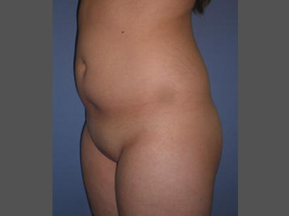 Before and After Liposuction Case #46982