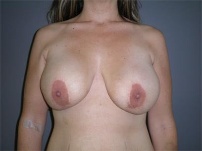Before and After Breast Lift Case #47124
