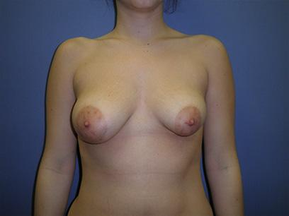 Before and After Breast Lift Case #47411