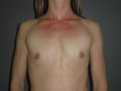 Before and After Breast Augmentation Case #47700