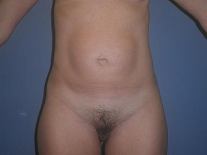 Before and After Abdominoplasty Case #47776