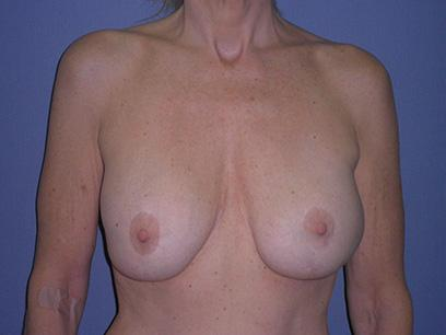 Before and After Breast Lift Case #49192