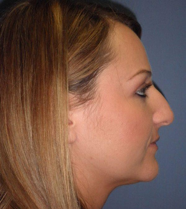 Before and After Nose Surgery Case #29892