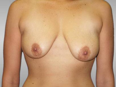 Before and After Breast Lift Case #20301