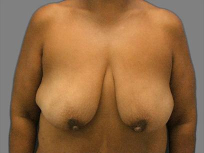 Before and After Breast Lift Case #985010
