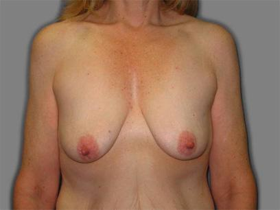 Before and After Breast Lift Case #9202