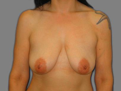 Before and After Breast Lift Case #340905