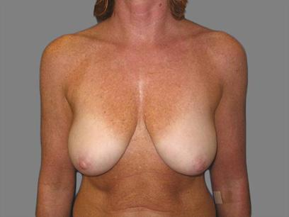 Before and After Breast Lift Case #96007