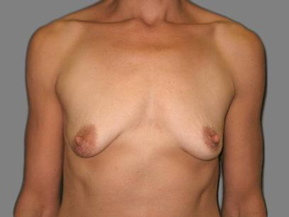 Before and After Breast Lift Case #80408