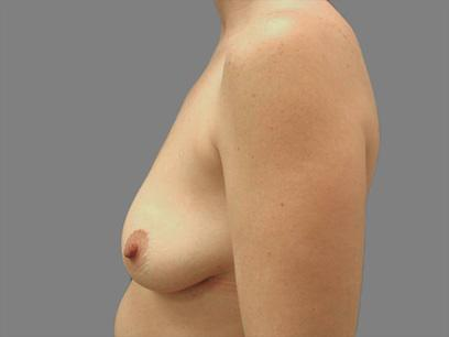 Before and After Breast Lift Case #14009