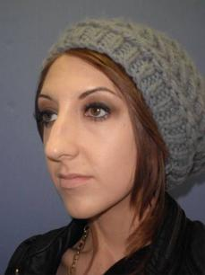 Before and After Nose Surgery Case #621003