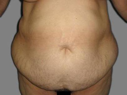 Before and After Abdominoplasty Case #604010