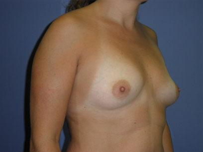 Before and After Breast Augmentation Case #92112