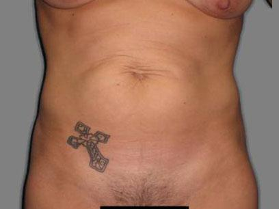 Before and After Abdominoplasty Case #502011