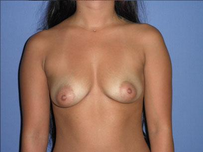 Before and After Breast Augmentation Case #81013