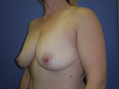 Before and After Breast Augmentation Case #53014