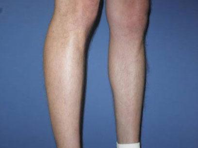 Before and After Calf Implants Case 001