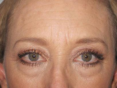 Before and After Brow & Forehead Lift Case 001