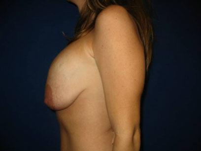Before and After Breast Reconstruction Case #940801