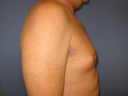 Before and After Male Breast Reduction Case #905031