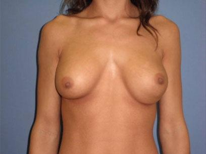 Before and After Breast Augmentation Case #14002