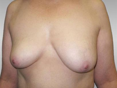 Before and After Breast Lift Case #976002