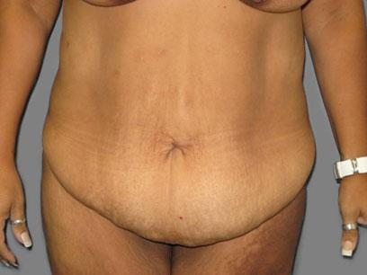 Before and After Abdominoplasty Case #988002
