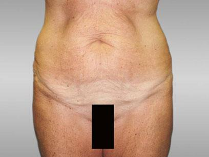 Before and After Abdominoplasty Case #155003