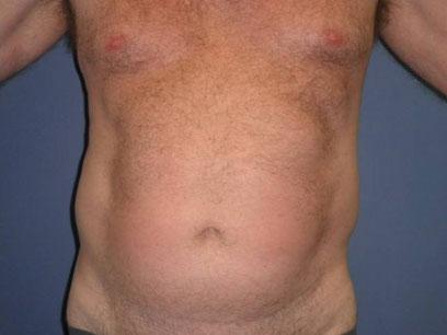Before and After Liposuction Case 003