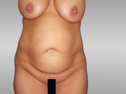Before and After Abdominoplasty Case #146004