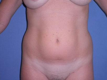 Before and After Liposuction Case 004