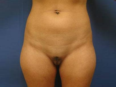 Before and After Liposuction Case 005