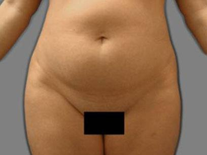 Before and After Liposuction Case 006