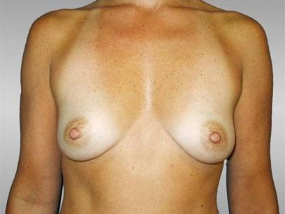 Before and After Breast Augmentation Case #42707