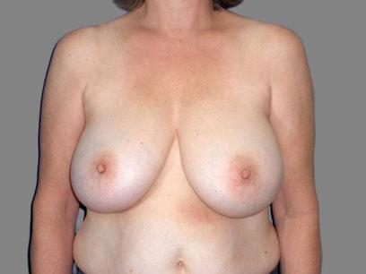 Before and After Breast Reduction Case #894007